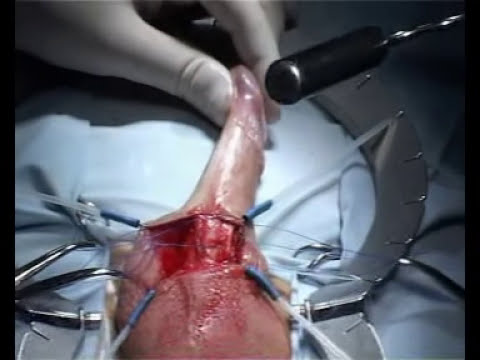 Операция по установке пенильного протеза TUBE производства Promedon (Аргентина)