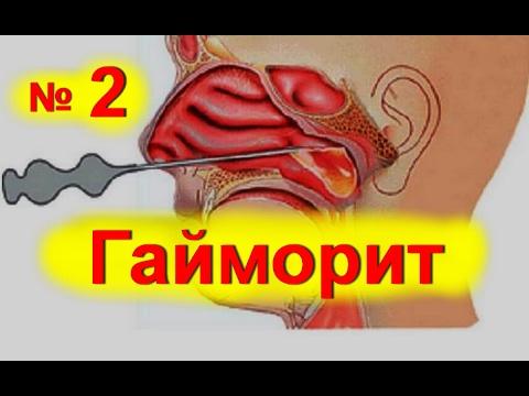 Быстрое лечение гайморита в домашних условиях