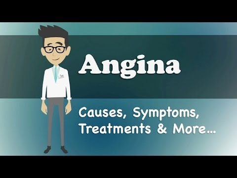 the signs and symptoms of angina Care guide for heart attack includes: possible causes, signs and symptoms, standard treatment options and means of care and support.