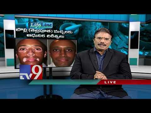 Vitiligo treatment    Lifeline    16-12-2018 - TV9