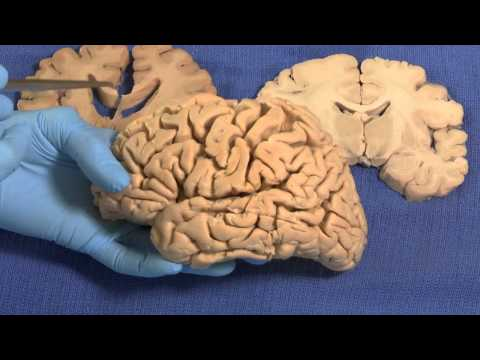 Limbic: Neuroanatomy Video Lab - Brain Dissections thumbnail