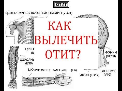 0 - Зовнішній отит (отит зовнішнього вуха) у дорослого – причини, симптоми і лікування зовнішнього отиту