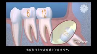 Зуб мудрости лечить в домашних условиях