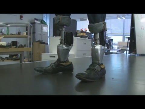 Bionic limbs transform lives
