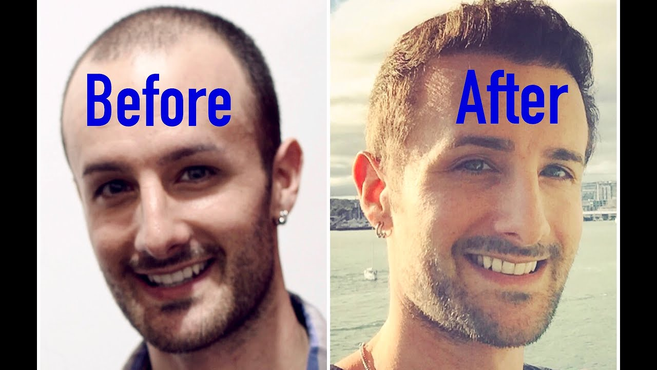 Propecia before and after real