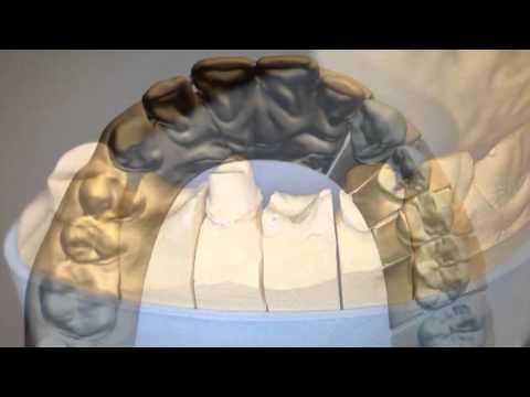 протезирование коронками из диоксида циркония (Prettau)