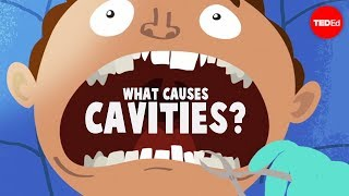 What causes cavities? - Mel Rosenberg