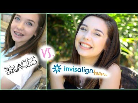Braces vs. Invisalign Teen: My Switch!