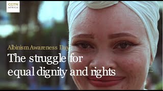 Albinism Awareness Day: The struggle for equal dignity and rights