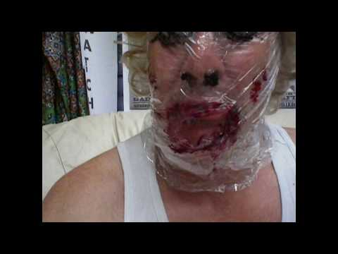 Cosmetic Surgery -