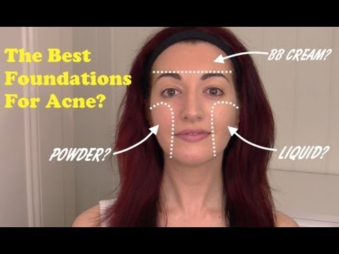 ► Best Foundations To Cover Acne. Scarring & Redness!   Oily/Acne Prone Skin Care 2013