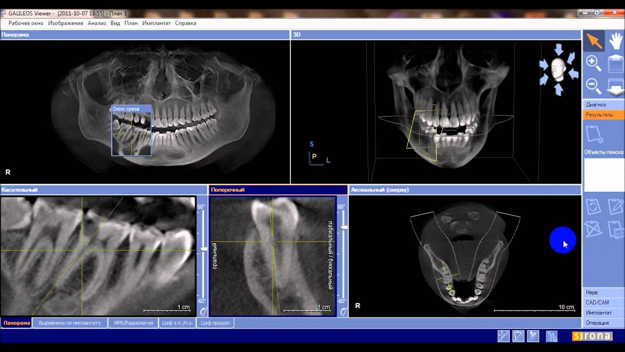 Трехмерный дентальный компьютерный томограф galileos (the dental company sirona)