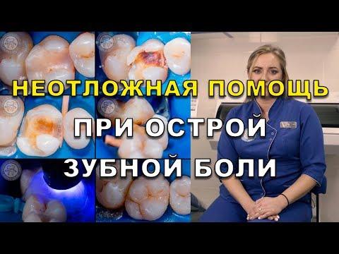 Острая зубная боль в зубе – что делать и как избавиться