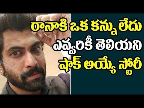 Shocking! Rana Daggubati have only one eye other eye doesn't work | Baahubali 2 | Top Telugu TV thumbnail
