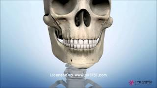 Facial bone surgery, ASO, Jaw surgery, 사각턱, 광대, 돌출입, 양악