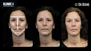 MTV-Lift Harmony Approach Restylane and Azzalure fullface treatment