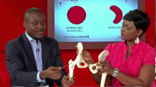 #VodafoneHealthlines Ep2- Dealing with Sickle Cell Disease