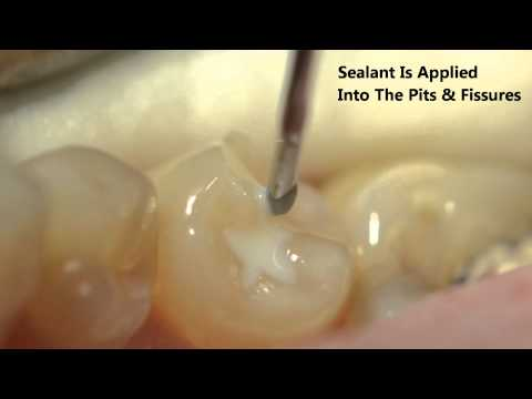 Pit and fissure sealants this short video talks about how to protect