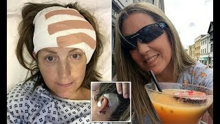 Woman tormented by condition that means she hears eyeballs moving - Daily News