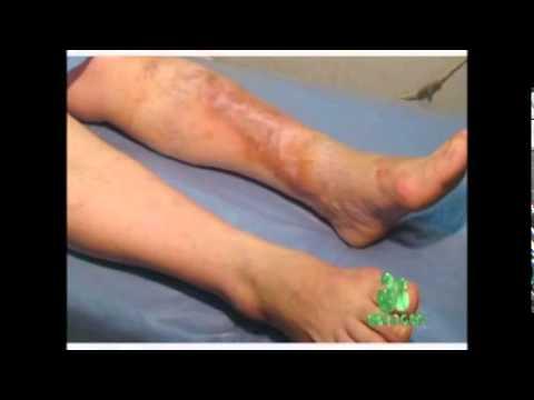 La trombosis aguda gemorroidalnyy de los nudos