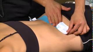Kinesio Clinical Video Introduction - Acupunture