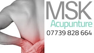 Acupuncture Sports Injury Clinic Wigston Leicestershire
