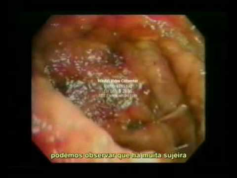 Cuide Bem Do Seu Intestino Video Educativo