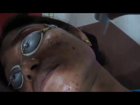 Medlite Fairness Treatment