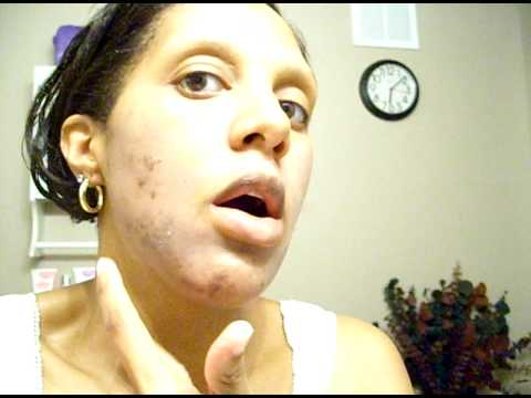 Jessner's Chemical Peel African American- Day 1