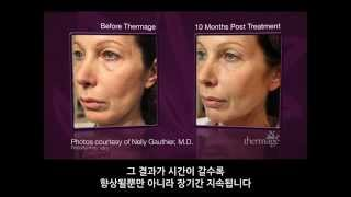 Thermage Face  Body Patient Video Loop KR