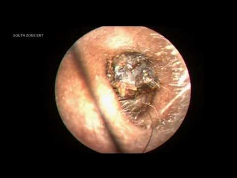 IMPACTED EAR WAX DIFFICULT TO REMOVE.
