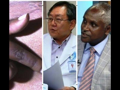 The Korean Hospital Crises - በኮሪያ ሆስፒታል በተፈጠረው የህክምና ስህተት ላይ የኮሪያ ሆስፒታልና የባለሙያ ምላሽ