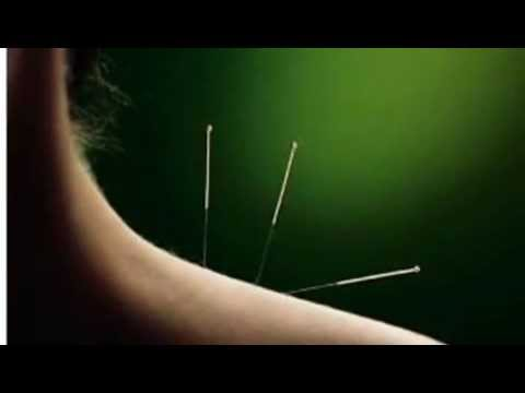 What does Acupuncture Cure?  www.evolvewellness.com