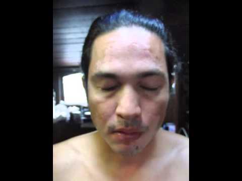 curacion vitiligo cara 2015 03 23 por Dios nuestro padre celestial