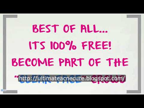 [HD] The Ultimate Acne Scar Removal Guide Natural Works 100%