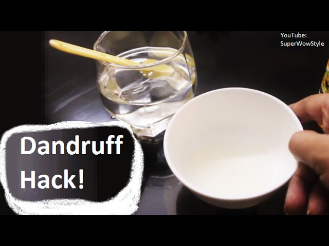 Natural Beauty Hacks #1 -  How to Get Rid of Dandruff at Home? _ Hair Hacks