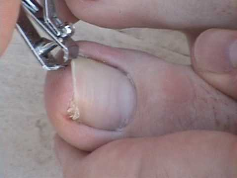 How to Remove an Ingrown Toenail