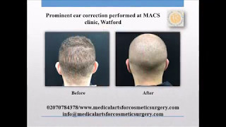 Prominent ear correction at MACS clinic