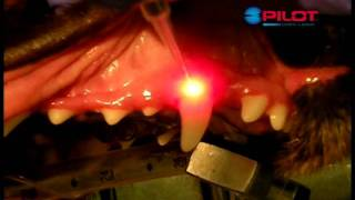 Pilot Laser Surgical Procedures