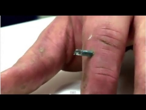Nail In Finger - Bizarre ER