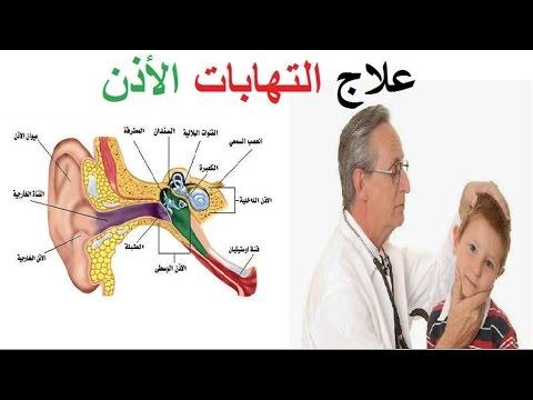 علاج التهاب الأذن الخارجية | التهاب الأذن الخارجية المزمن | اسباب التهاب الأذن الخارجية HD