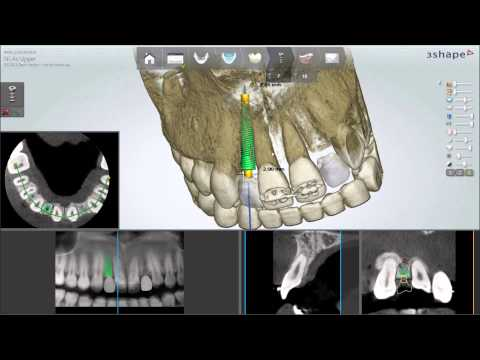 Dental System™ 2013 - Implant Planning and Guided Surgery
