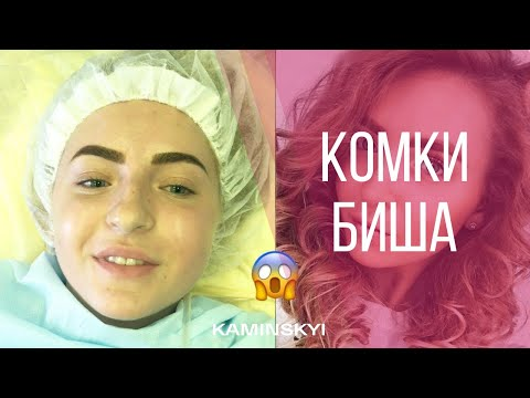 Комки Биша - Buccal Fat Removal