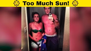 Funny Sunburn Fails That Made People Regret Not Using Lotion! 🌞