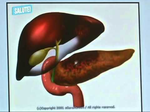 colecisti intervento laparoscopia