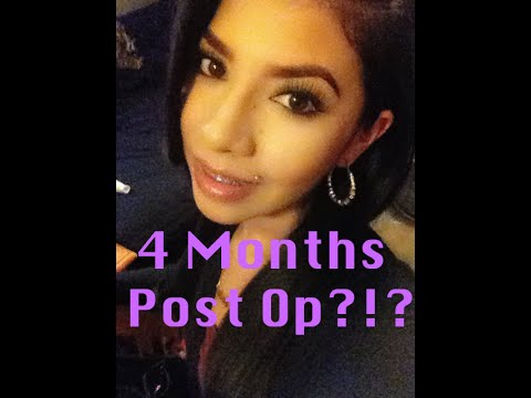Double Jaw Surgery | 4 Months Post Op | Orthognathic | Underbite Journey Part 11