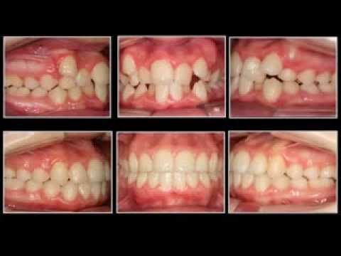 Caso 1. Apiñamiento dental severo. Sistema Autoligable Damon.