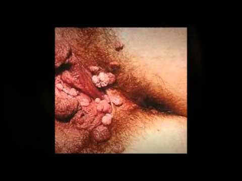 HPV Genital Warts Cure for the Frustrated!