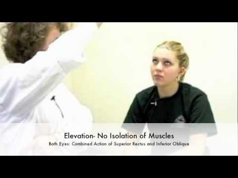 Extraocular Muscles Test Testing Extraocular Muscles