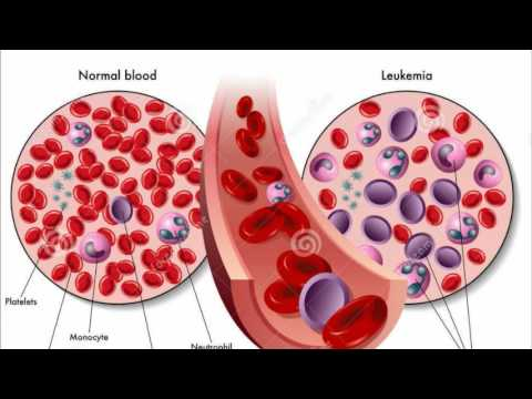 leukemia causes symptoms and treatment